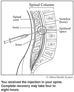 spinal column/epidural diagram
