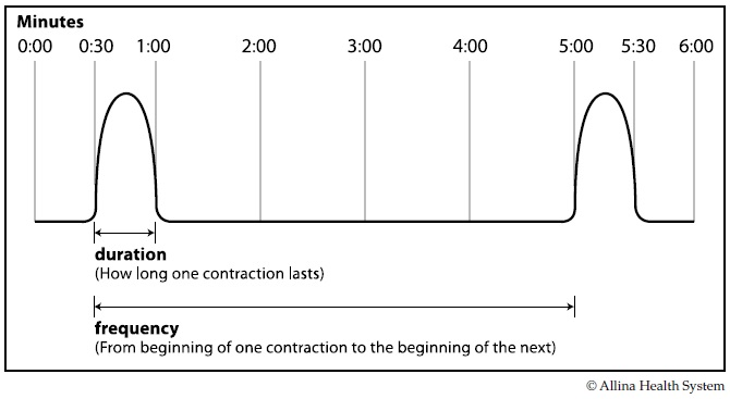 Timing contractions chart