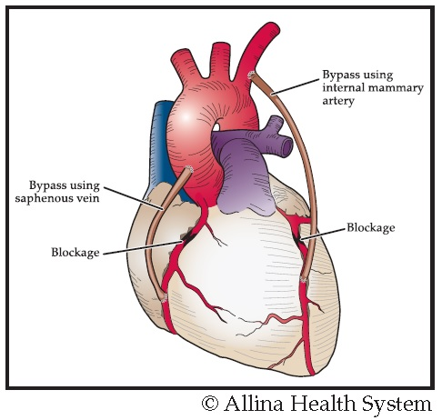 This graphic of the heart shows two blockages and a bypass using a saphenous vein and another bypass using an internal mammary artery