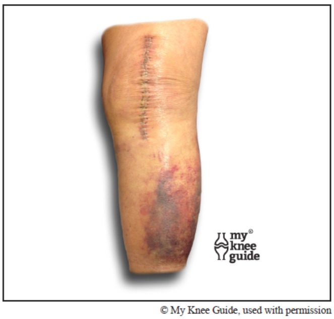 Incision healing after knee replacement surgery | Total knee